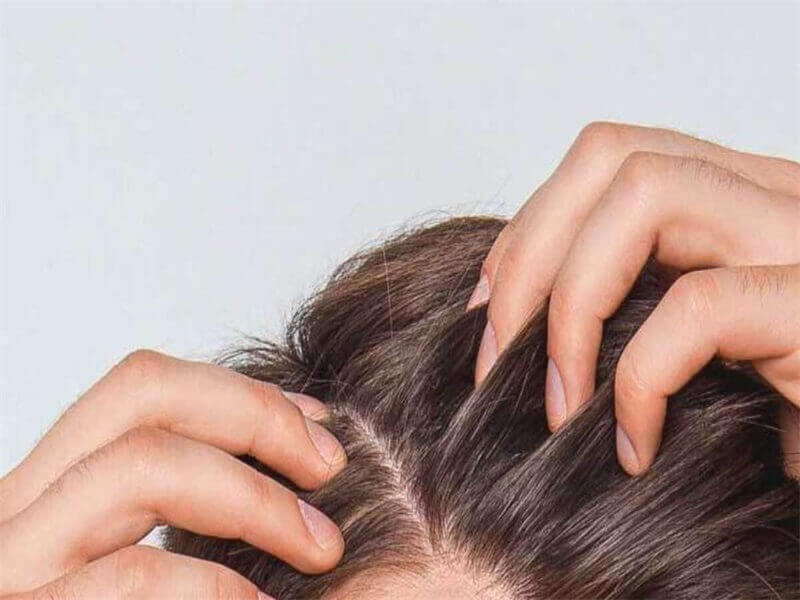 spray-some-protective-product-to-your-scalp